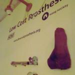 Travail de recherche sur des prothèse médicales DIY